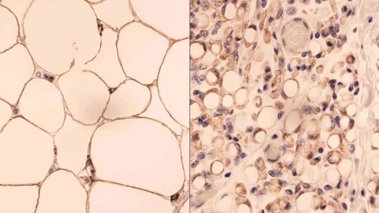 Порівняння на фото білого та бурого жиру в організмі людини