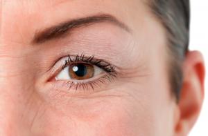 фото зморшок навколо очей до початку користування препаратом сиролімус