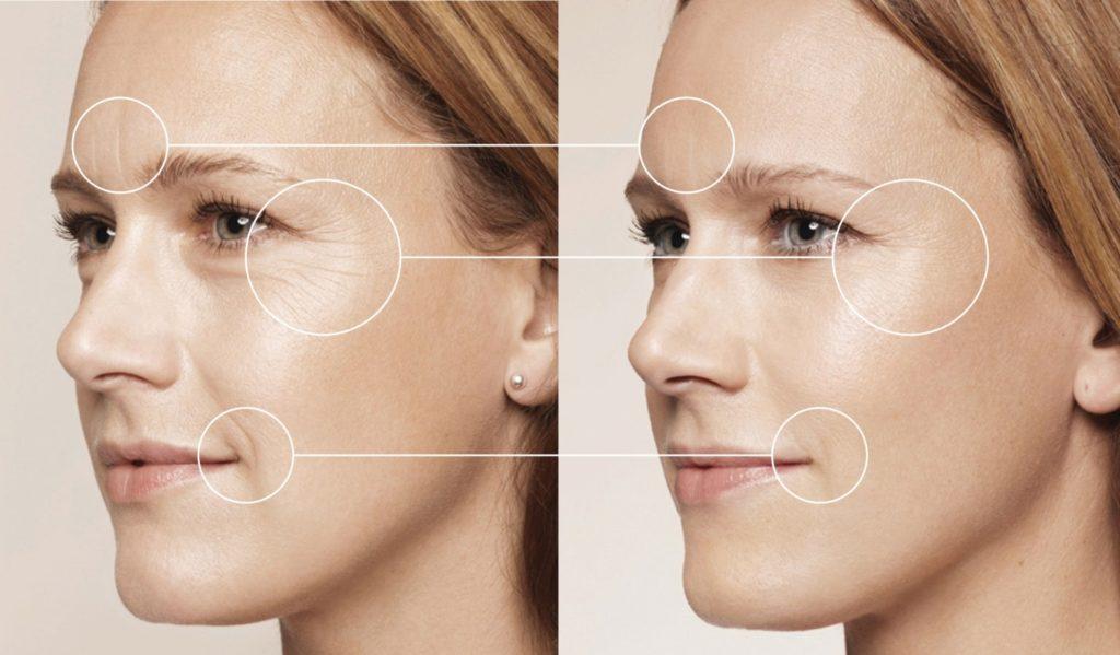 Фото лица женщины до и после процедуры биоревитализации.